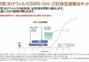 <h1>新型コロナウイルス抗体検査受付開始</h1>